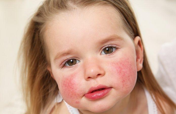 аллергия на прививку манту