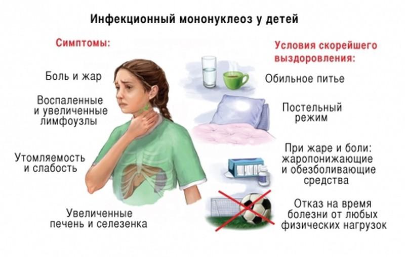 мононуклеоз симптомы и лечение