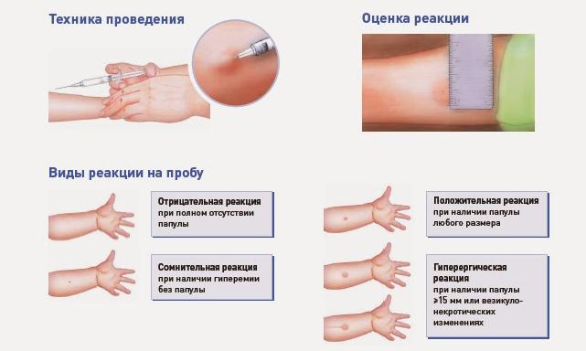 манту виды реакции на прививку
