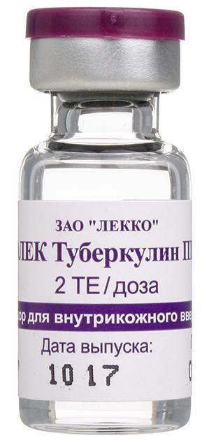 аллергия на туберкулин