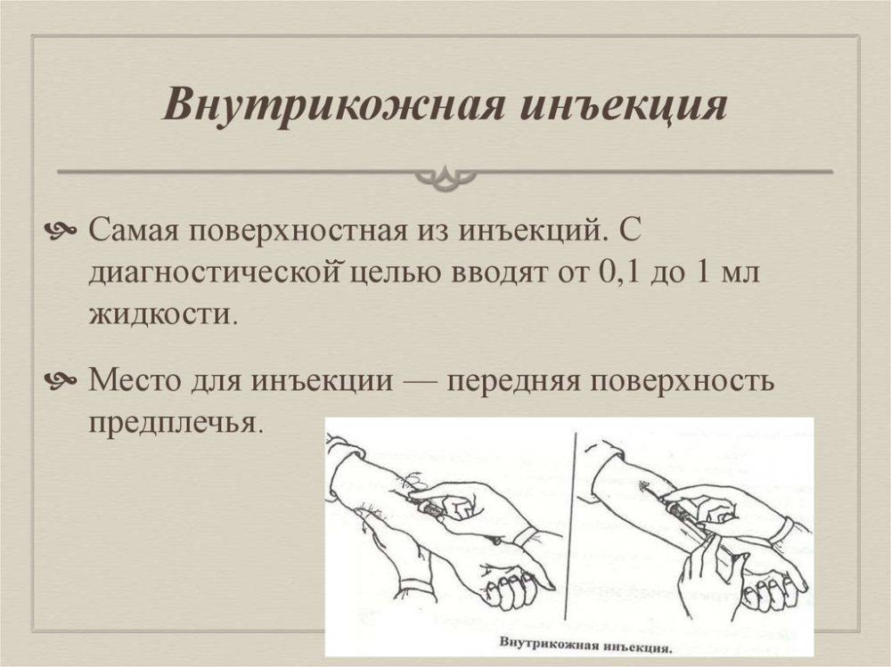 внутрикожная инъекция-1