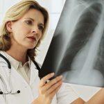 рентген вместо манту