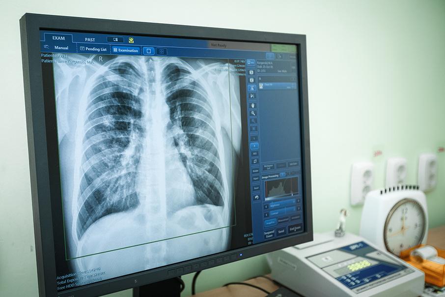 рентген диагностика туберкулеза
