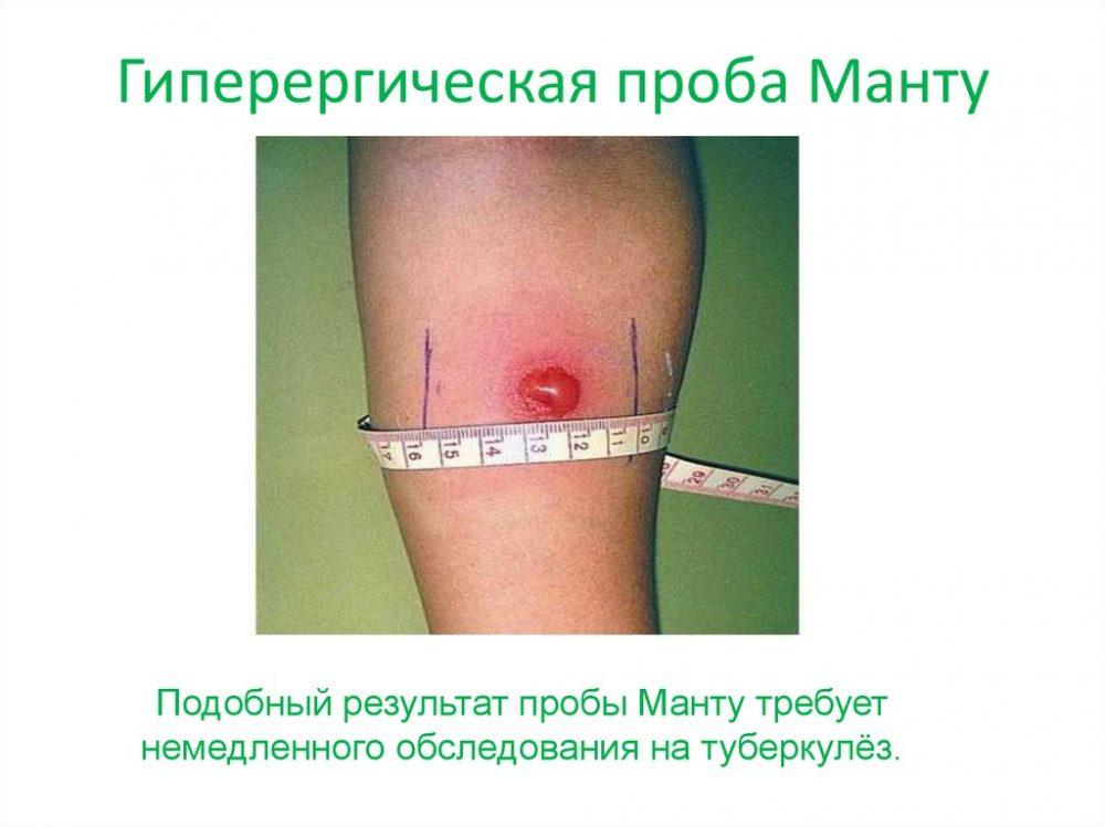 гиперергическая проба манту-1