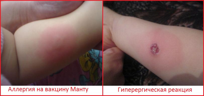 примеры реакции манту у ребенка