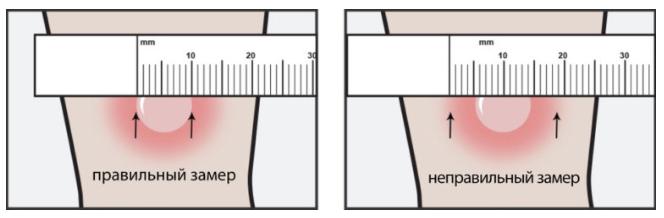 как правильно измерить манту пример